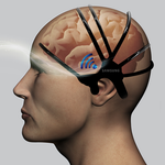 Samsung Is Working On A Wearable Early Warning System For Strokes, May Lead To Better Monitors For Many Other Conditions